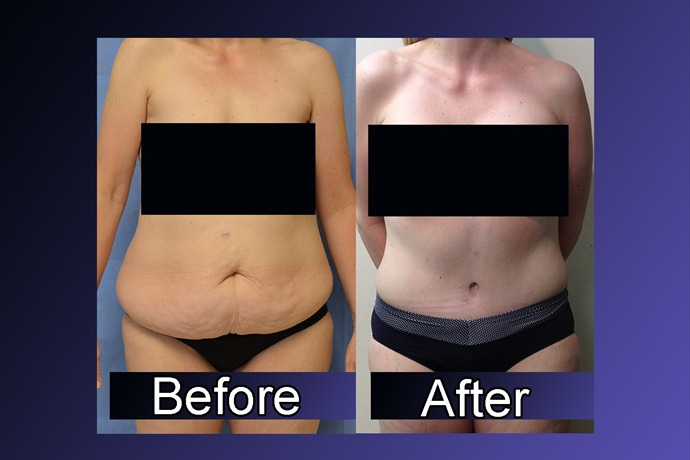 New data from the American Society of Plastic Surgeons shows that an increase in weight loss surgeries may be having a ripple ef_-376498498455123435