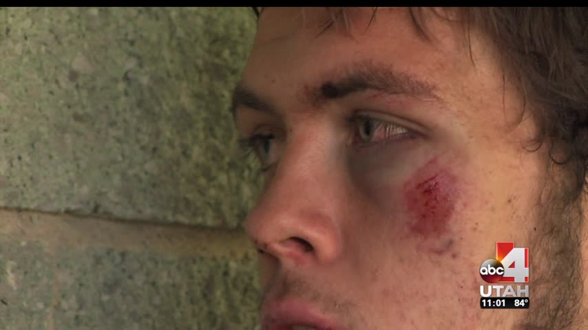Pistol whipping victim says attackers had wrong guy_69576936-159532