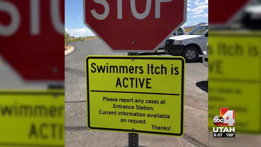 Swimmer-s Itch Returns To Sand Hollow State Park_02348631-159532