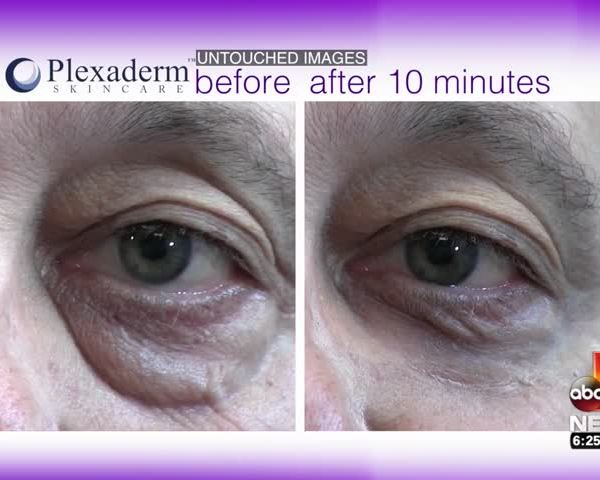How You Can Remove Bags and Wrinkles from Under Your Eyes!