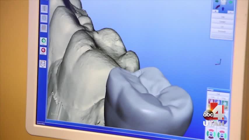 Apex Dental