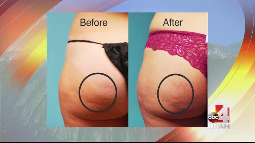 Cellulite procedure