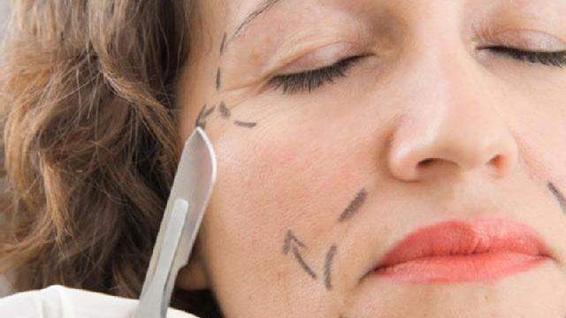Plastic surgery, woman's face_2931473485545555-159532