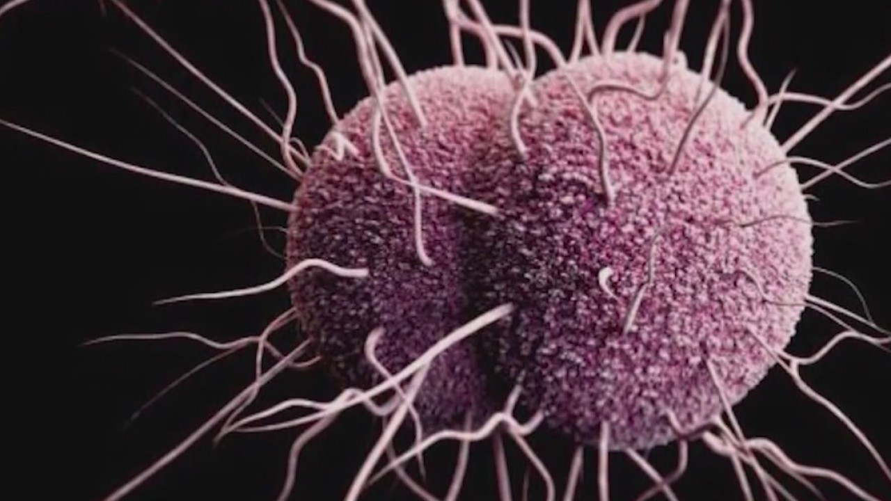 Chlamydia__gonorrhea_continue_to_rise_in_0_20180720232119