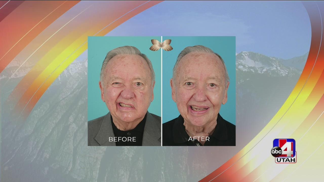 Helping restore facial paralysis