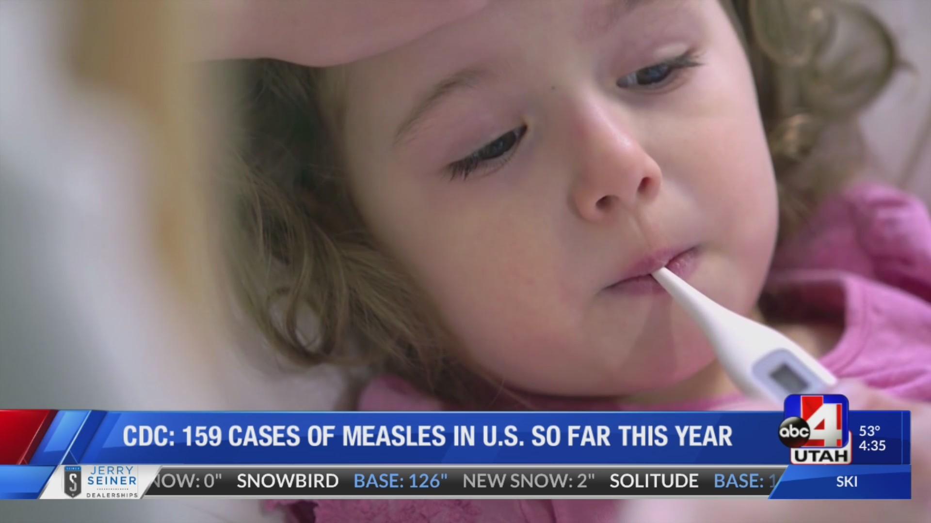 159 cases of measles in US in 2019