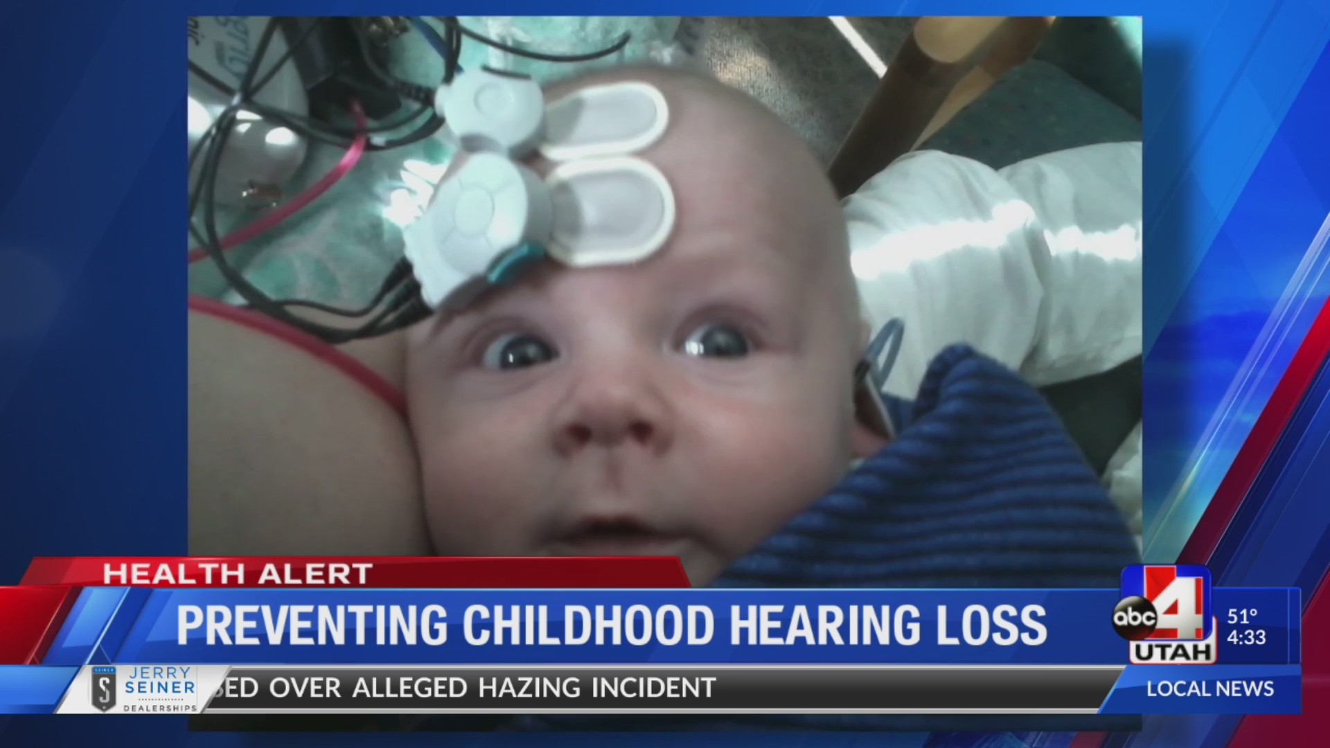 PREVENTING CHILDHOOD HEARING LOSS