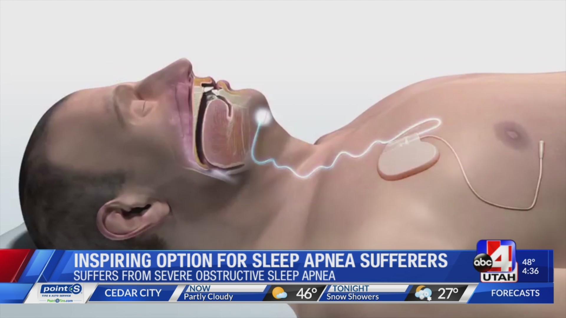 pacemaker device to cure sleep apnea