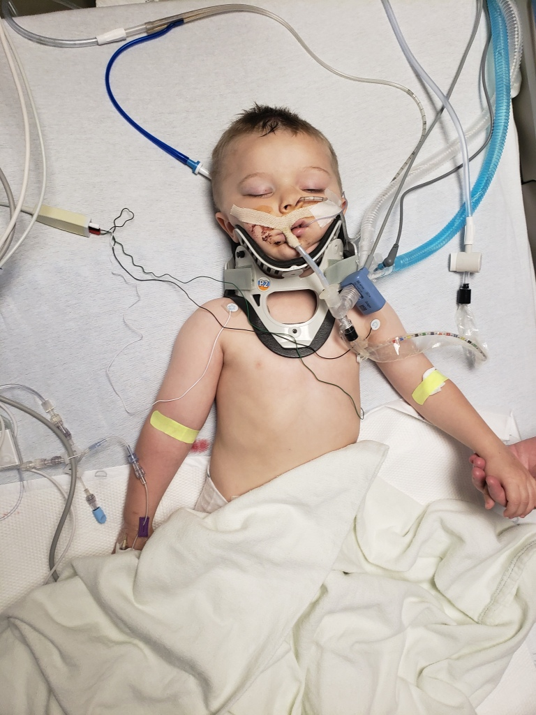 3-year-old Jacob Stallings in the hospital after falling from a second-story window