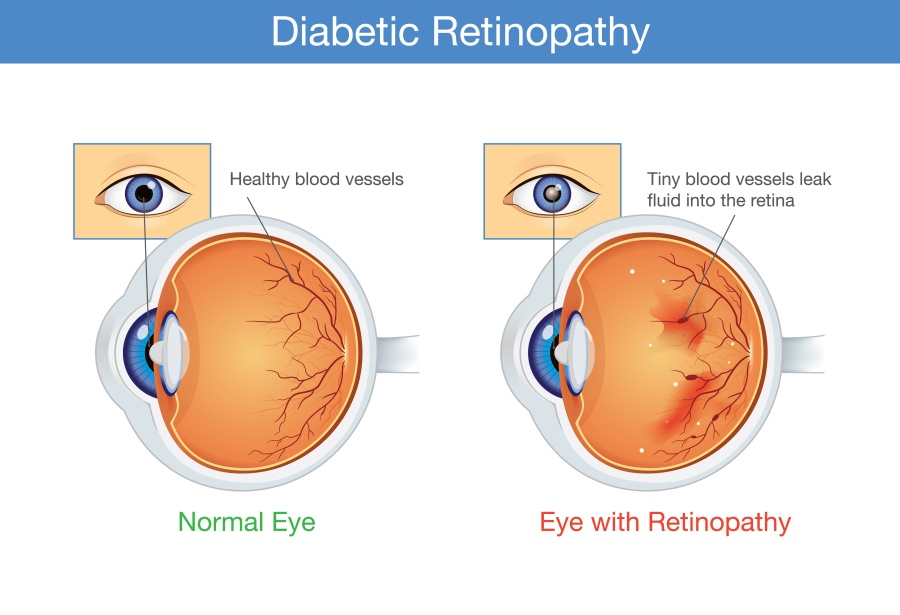 Example of Diabetic Retinopathy vs normal